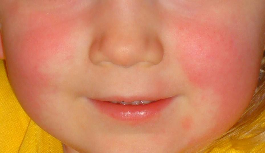 Otroške bolezni - škrlatinka