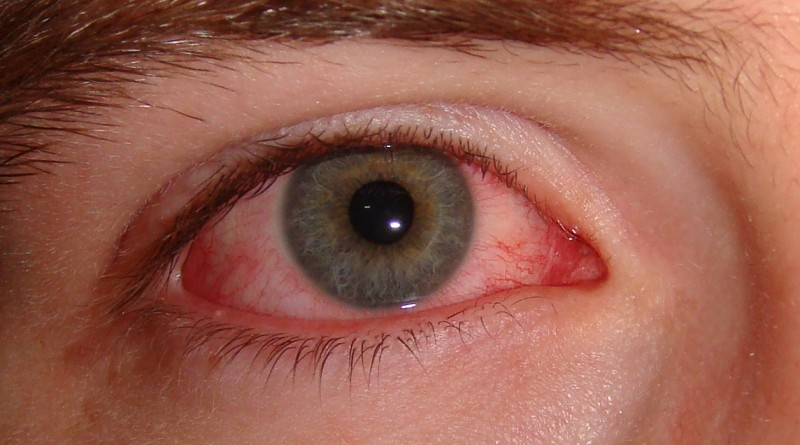 Vnetje oči (konjunktivitis)