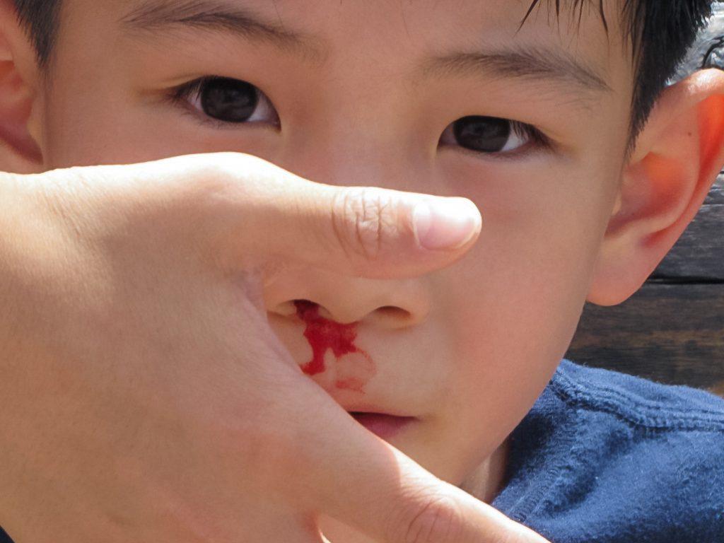 Krvavitev iz nosu pri otrocih