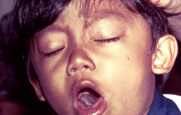 trdovratni-kaselj-virusni-ali-alergijski