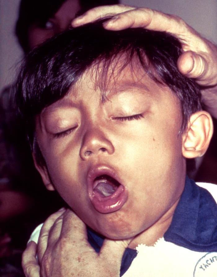 Trdovratni kašelj - virusni ali alergijski