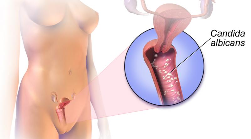 Kandida – vzroki in simptomi
