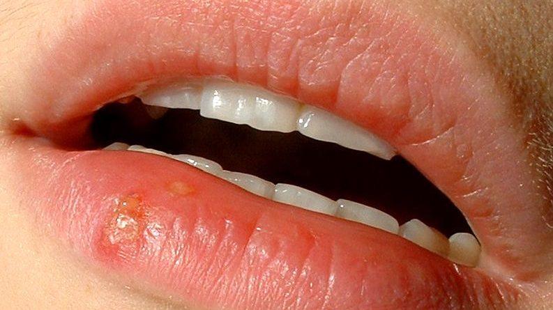 Herpes na ustnicah - simptomi in zdravljenje