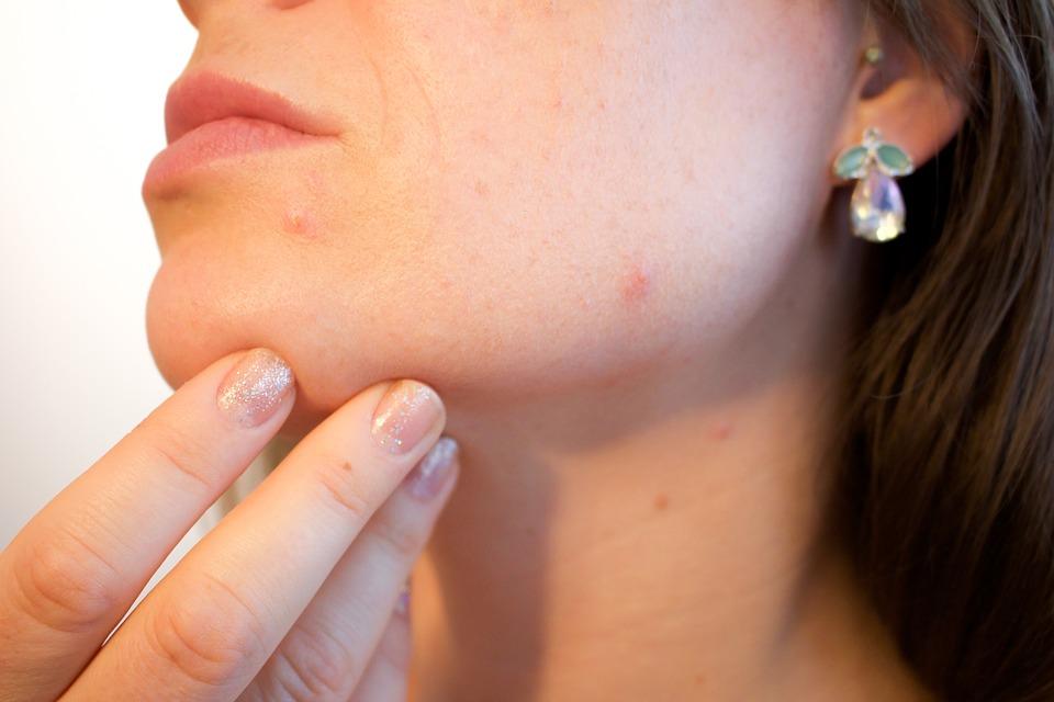 Poletne težave s kožo in ukrepi za pomoč