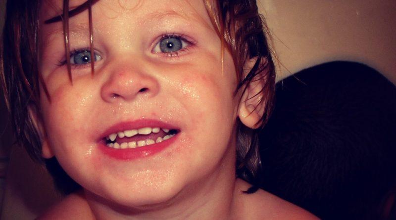 Nad vročino pri otroku brez zdravil