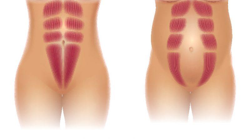 Diastaza rektusov - kirurško zdravljenje